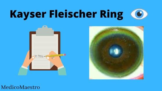 kayser fleischer ring