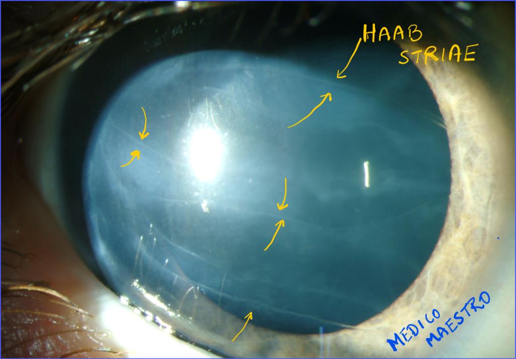 Haab's Striae in Congenital glaucoma